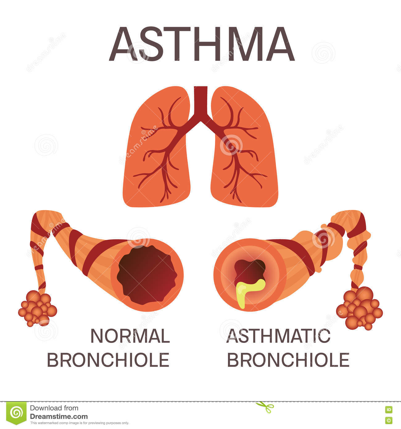 Normal And Asthmatic Bronchioles Stock Illustration - Illustration ...