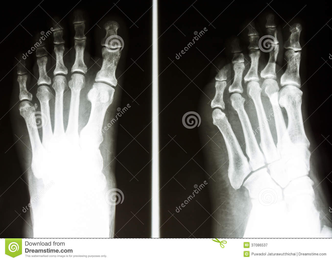 human foot x ray stock photos, images, & pictures - 677 images, Skeleton