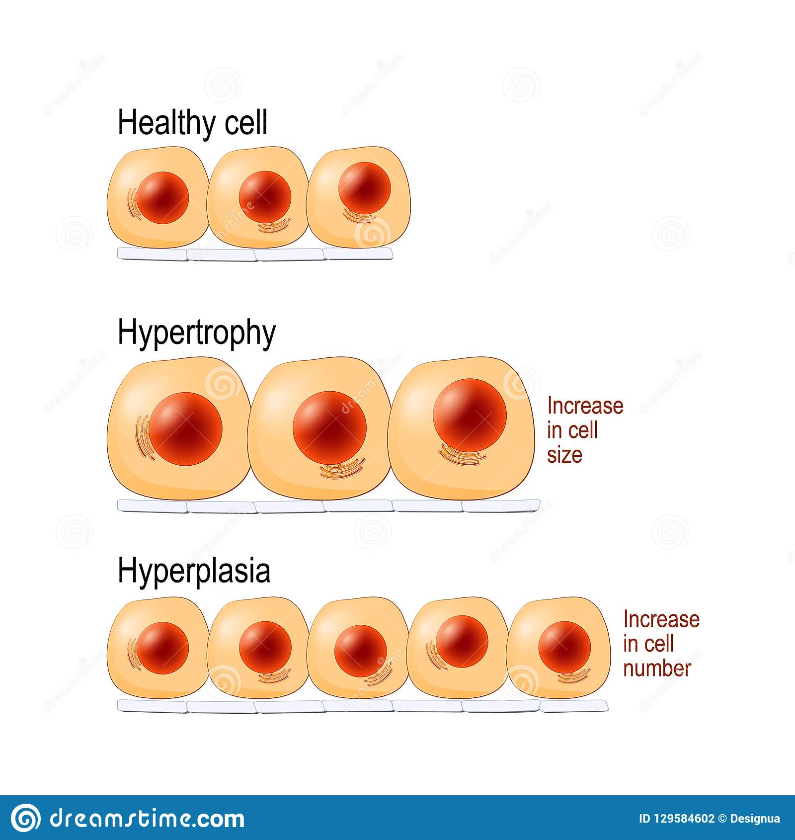 Normal Cells, Hypertrophy, And Hyperplasia Stock Vector - Illustration of diagram, malignant: 129584602