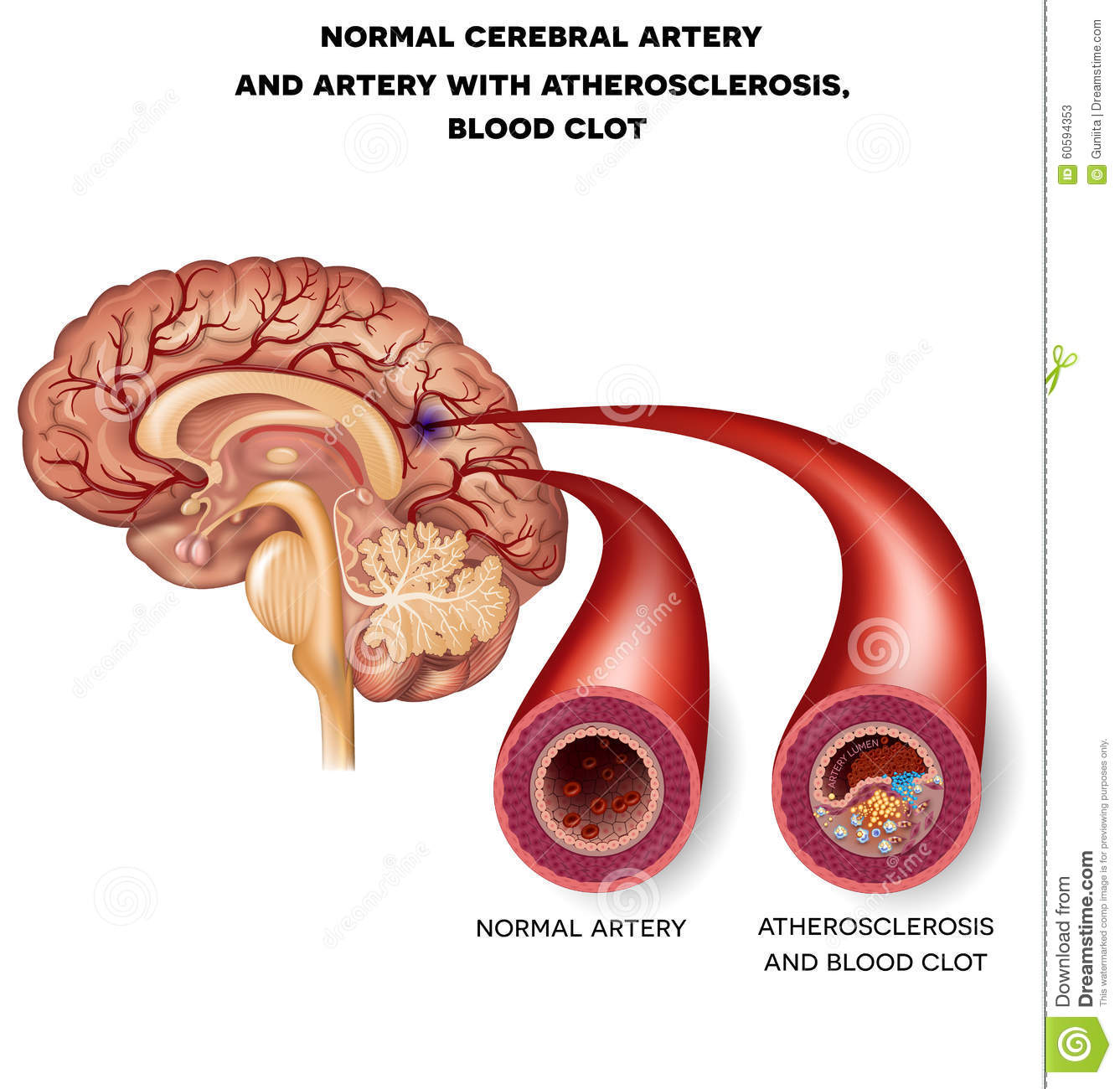 Normal Cerebral Artery And Artery With Blood Clot Stock Vector