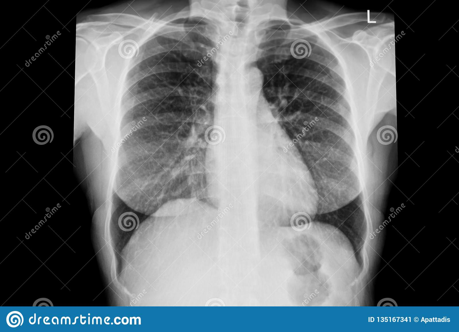 Normal chest x-ray image demonstrated heart,lungs,ribs,bones and muscles