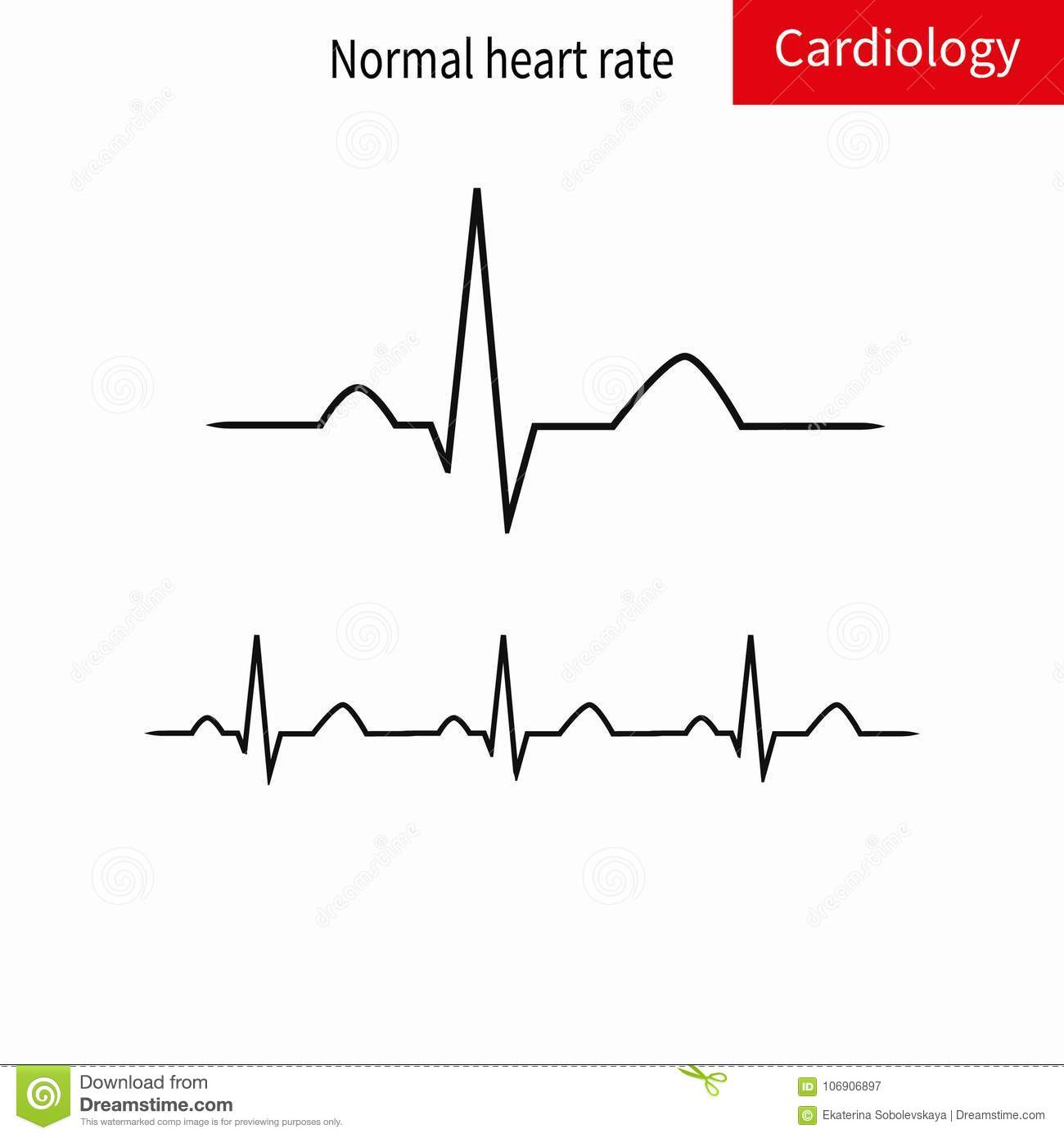 Normal ECG complex and normal sinus rhythm.