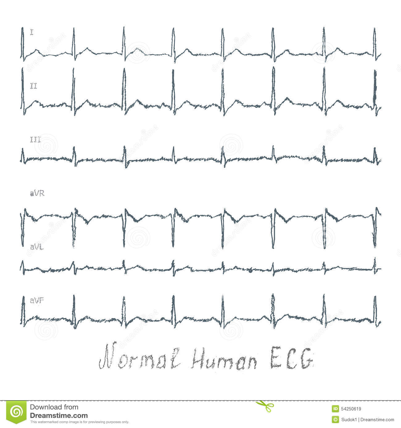 Normal Ecg Pattern Magnificent Inspiration