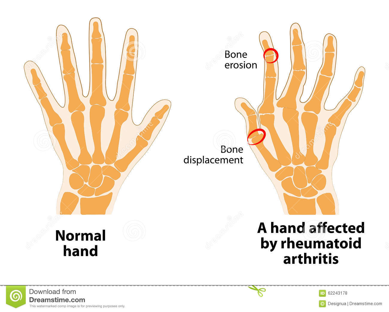 Dating rheumatoid arthritis