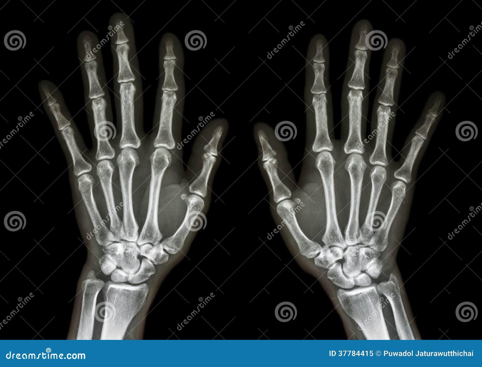 normal human 39 s hands stock image image of black asian 37784415. Black Bedroom Furniture Sets. Home Design Ideas