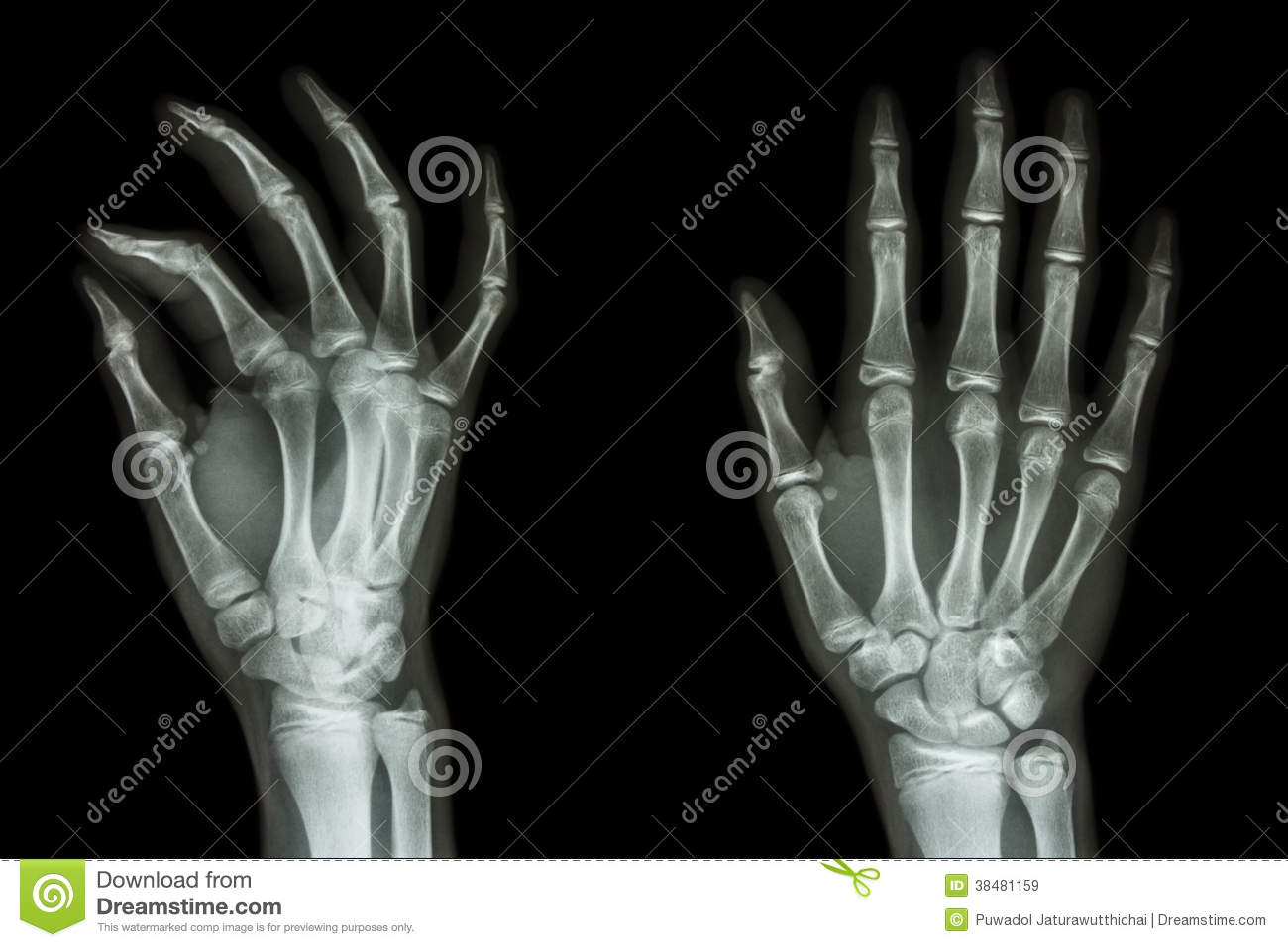 Normal humans hand