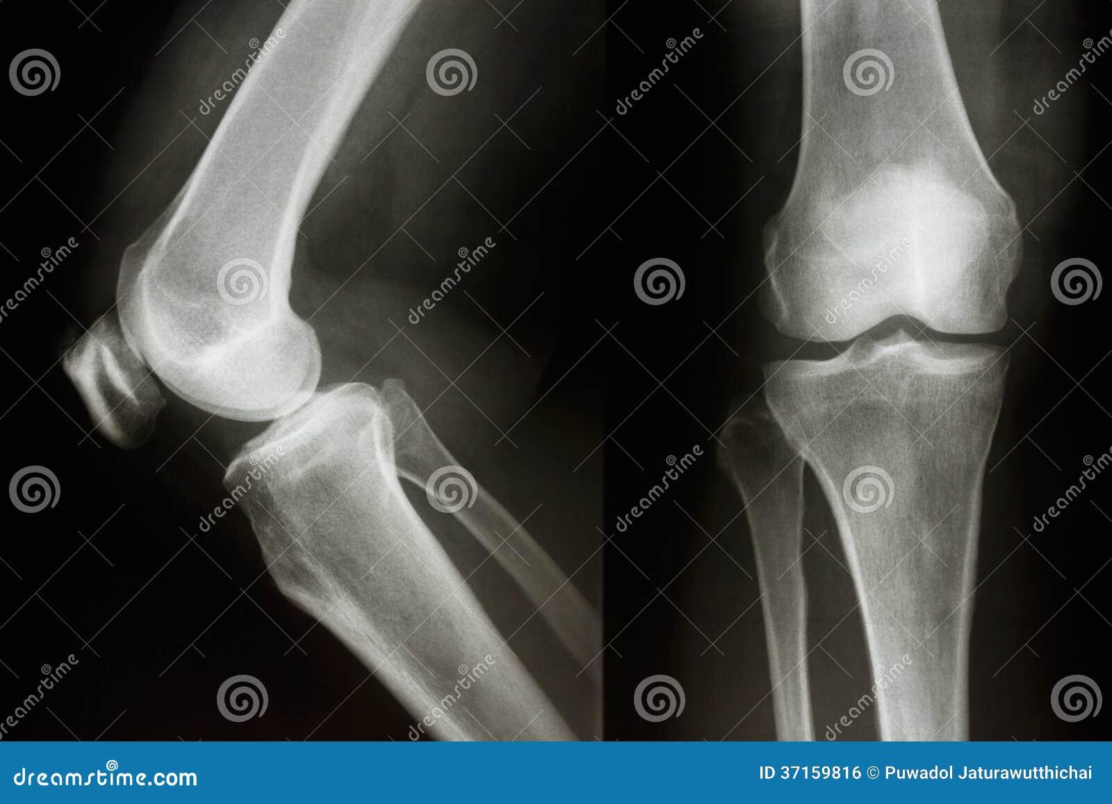 normal knee joint royalty free stock image image 37159816. Black Bedroom Furniture Sets. Home Design Ideas