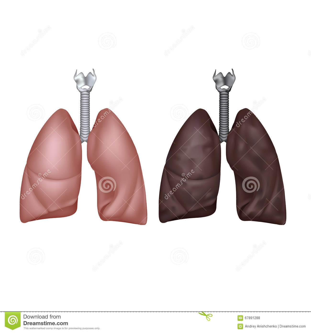 Normal And Smoker Lungs Stock Vector Image 67891288