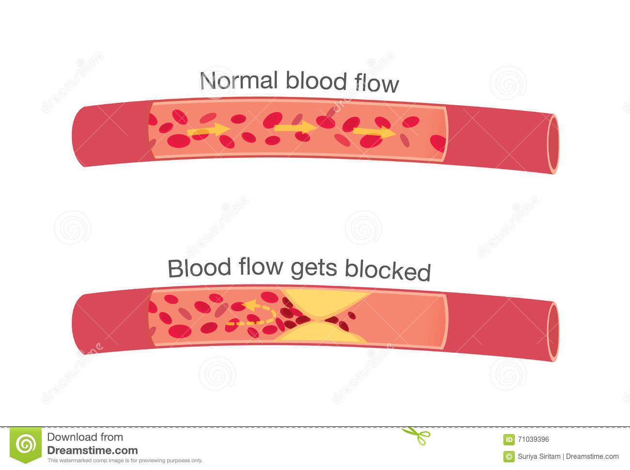 Normal Stages Blood Flow Blocked Stages Atherosclerosis Get Fatty Which Cause Angina Heart Attack