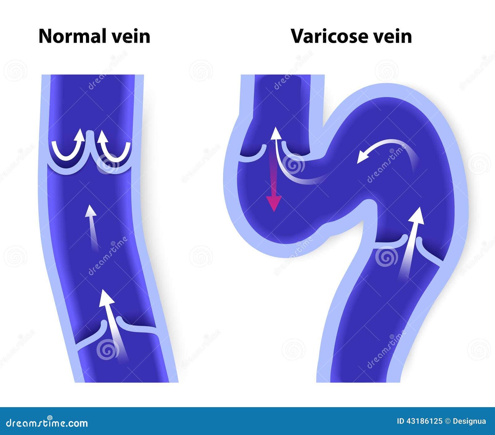 Normal Vein And Varicose Vein Stock Vector Illustration Of Cross