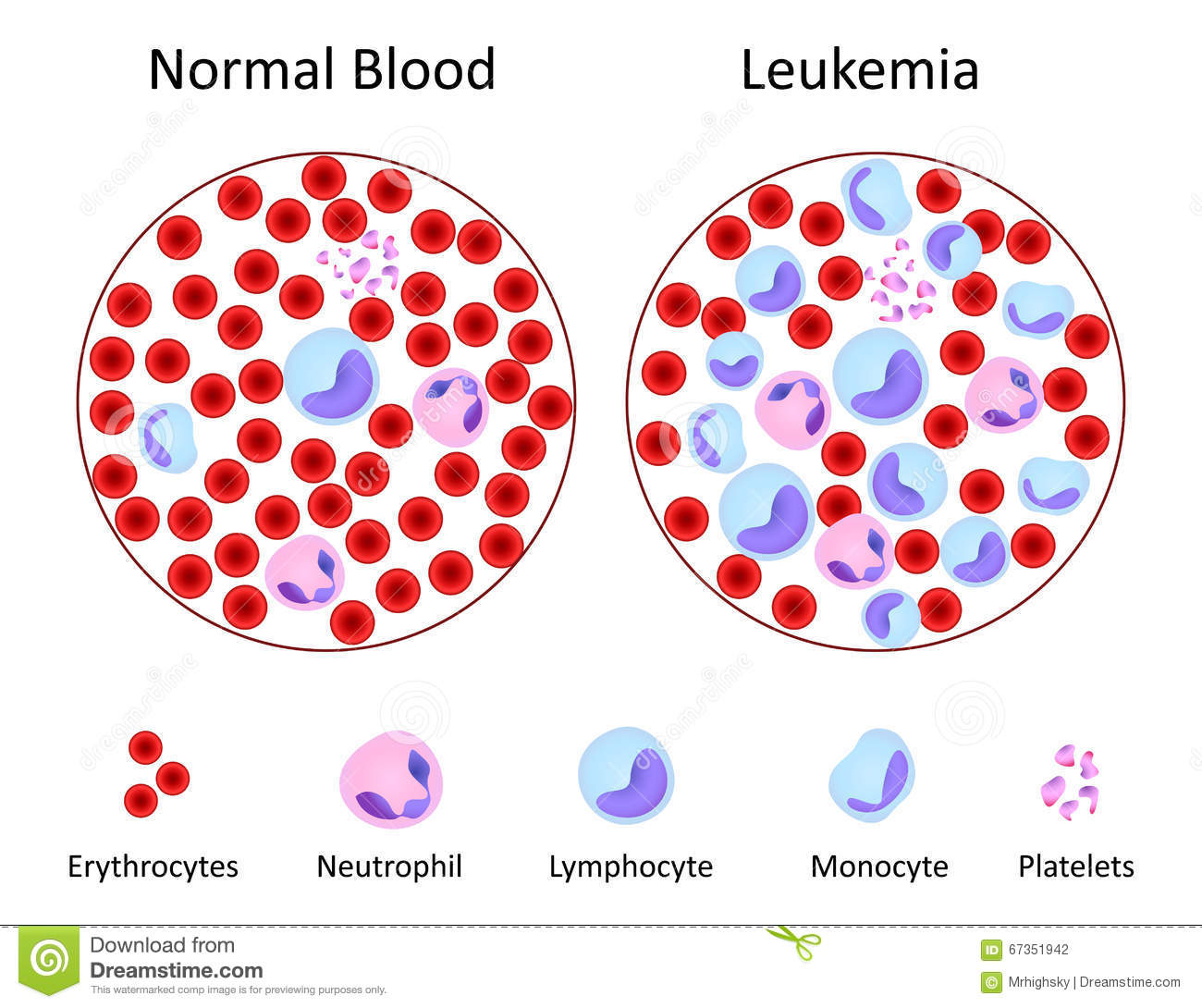Normal Vs Leukemia Blood Stock Vector - Image: 67351942