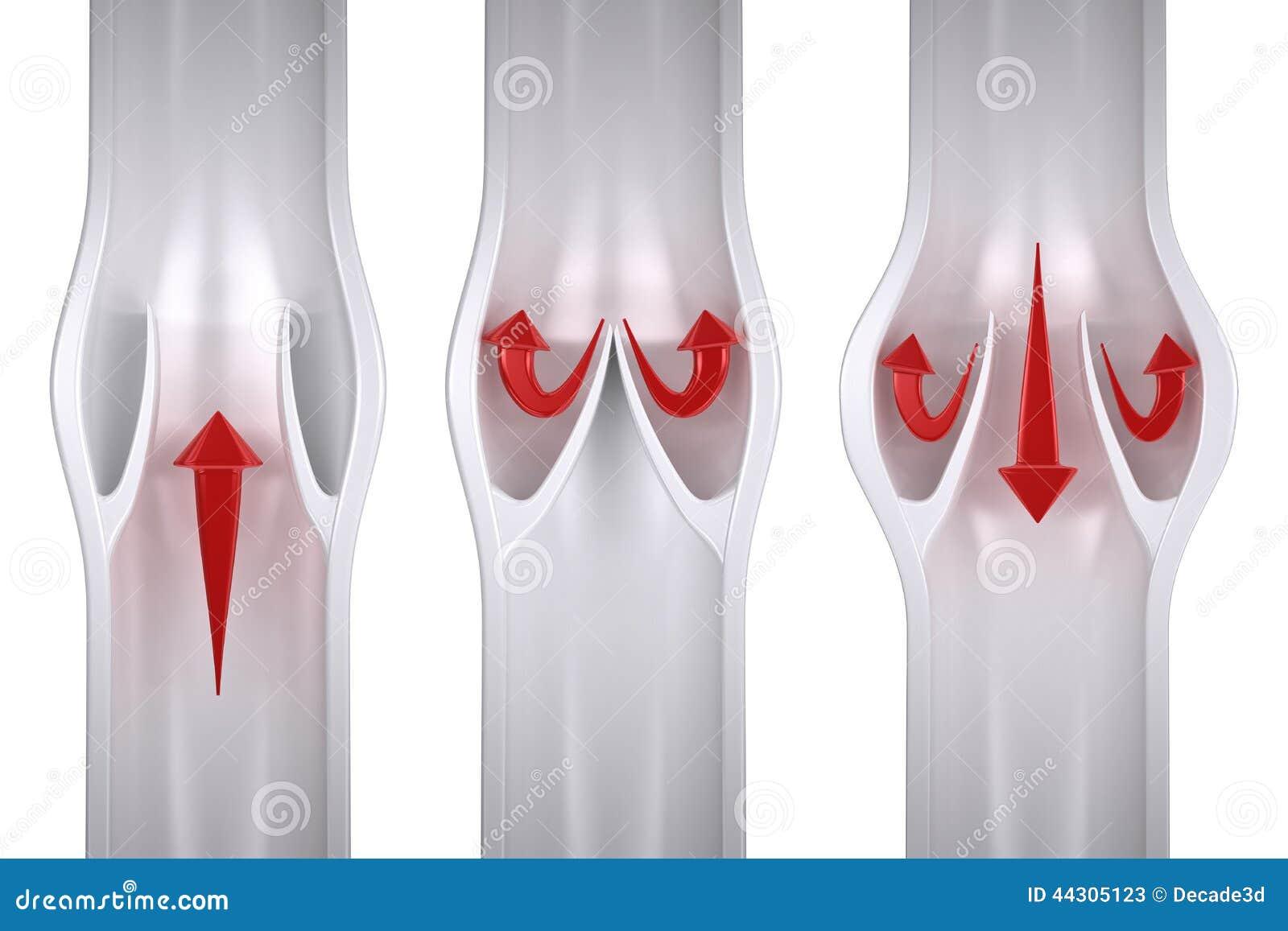 Normal Vs Varicose Vein Anatomy Stock Illustration Illustration