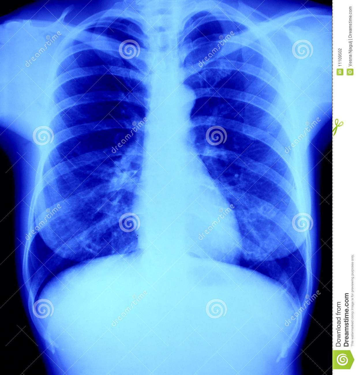 N Ray Radiography Normal X - Ray Radiogr...