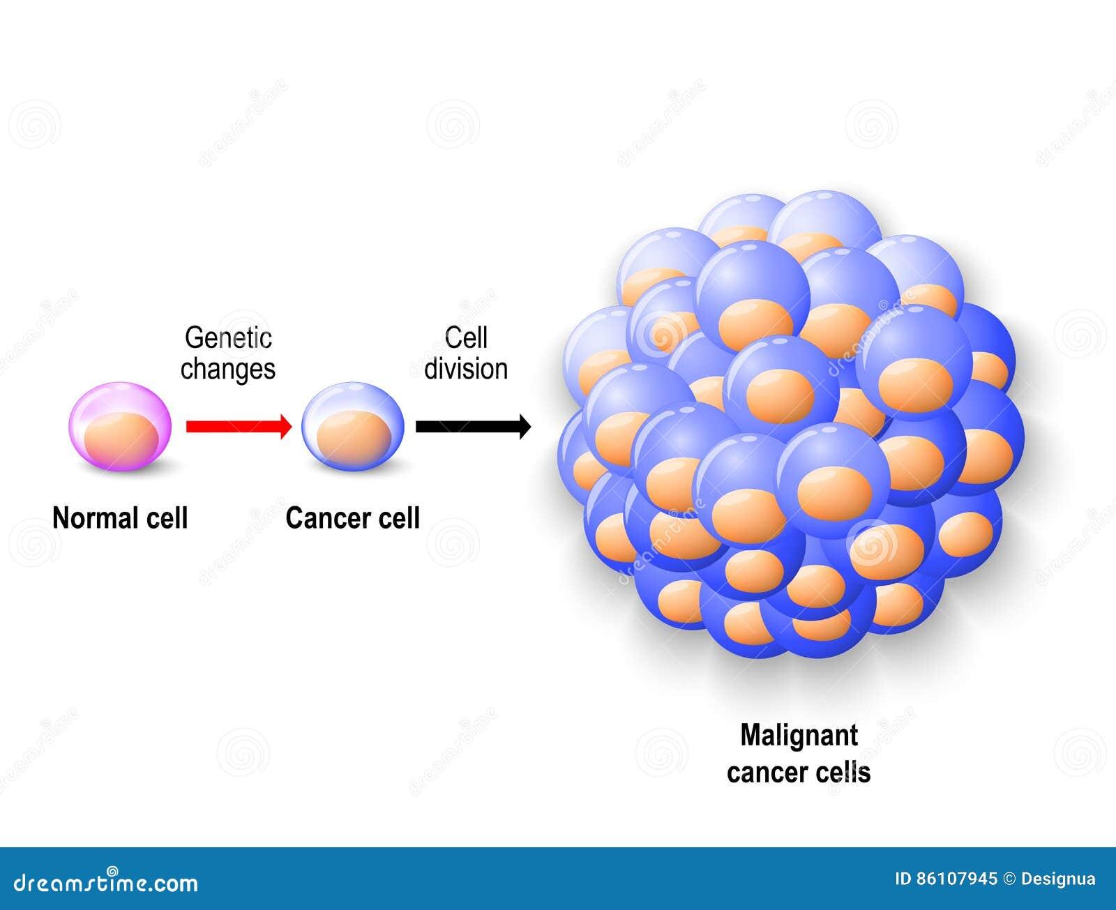 Normale Menschliche Zelle, Krebszelle Und Bösartiger Krebs Vektor ...