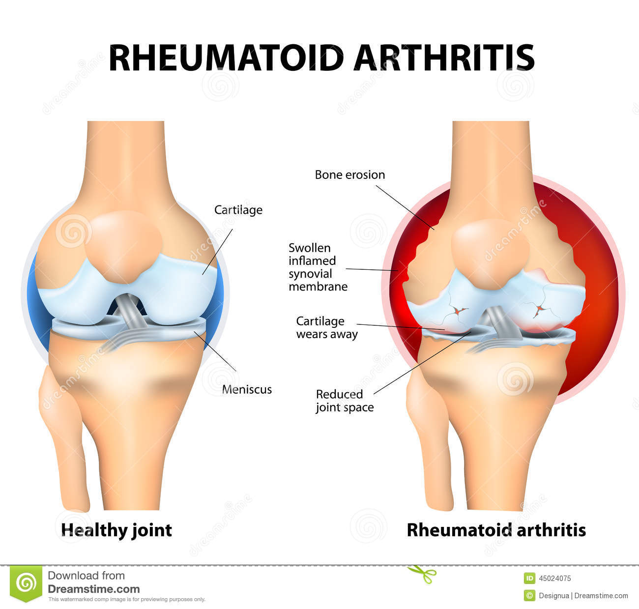 knee steroid injection pain