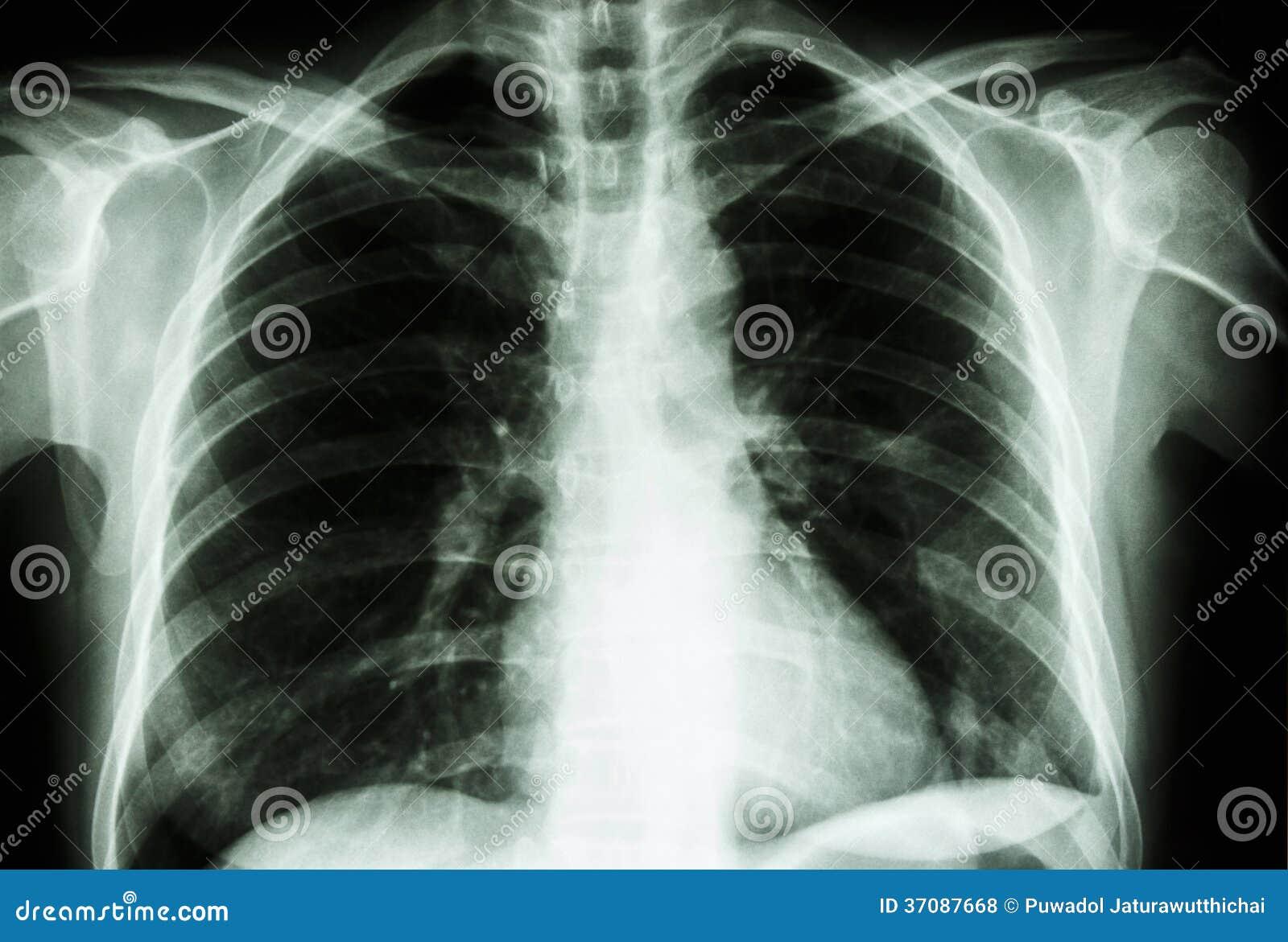 Download Normalna Istoty Ludzkiej Klatka Piersiowa Zdjęcie Stock - Obraz złożonej z lekarka, heart: 37087668
