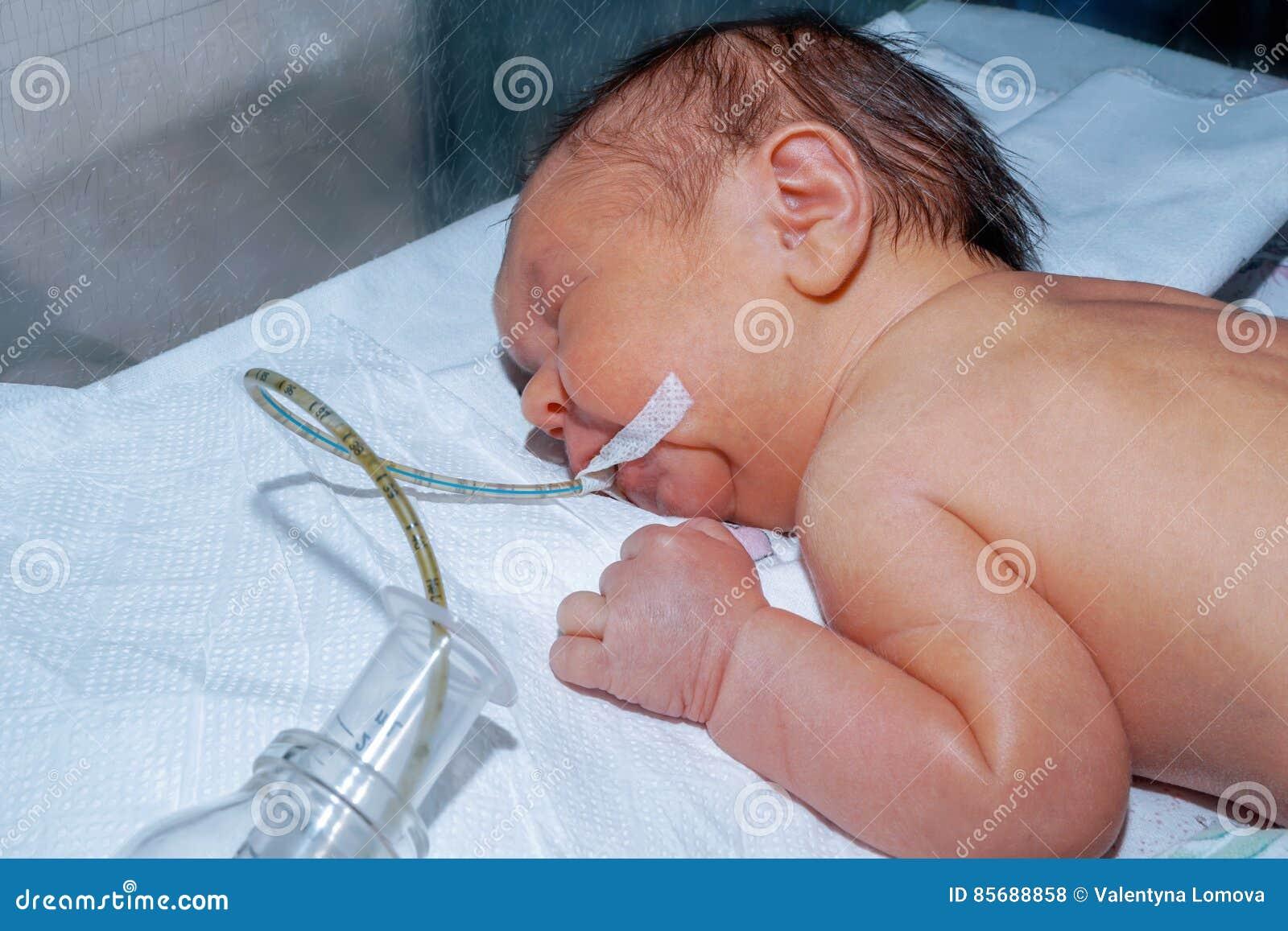 O bebê recém-nascido com icterícia neonatal está dormindo após a cirurgia