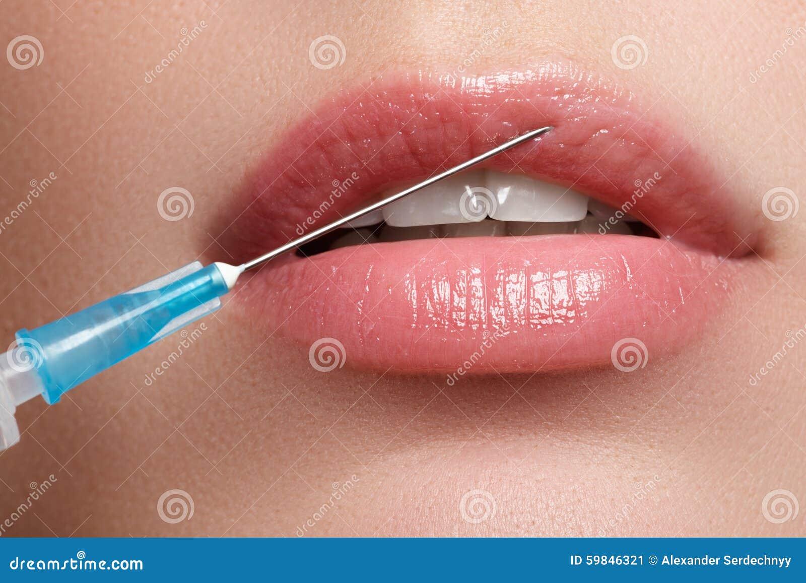 O close up da mulher bonita obtém a injeção em sua cara Bordos cheios Cara bonita e a cirurgia plástica e o cosmético da seringa