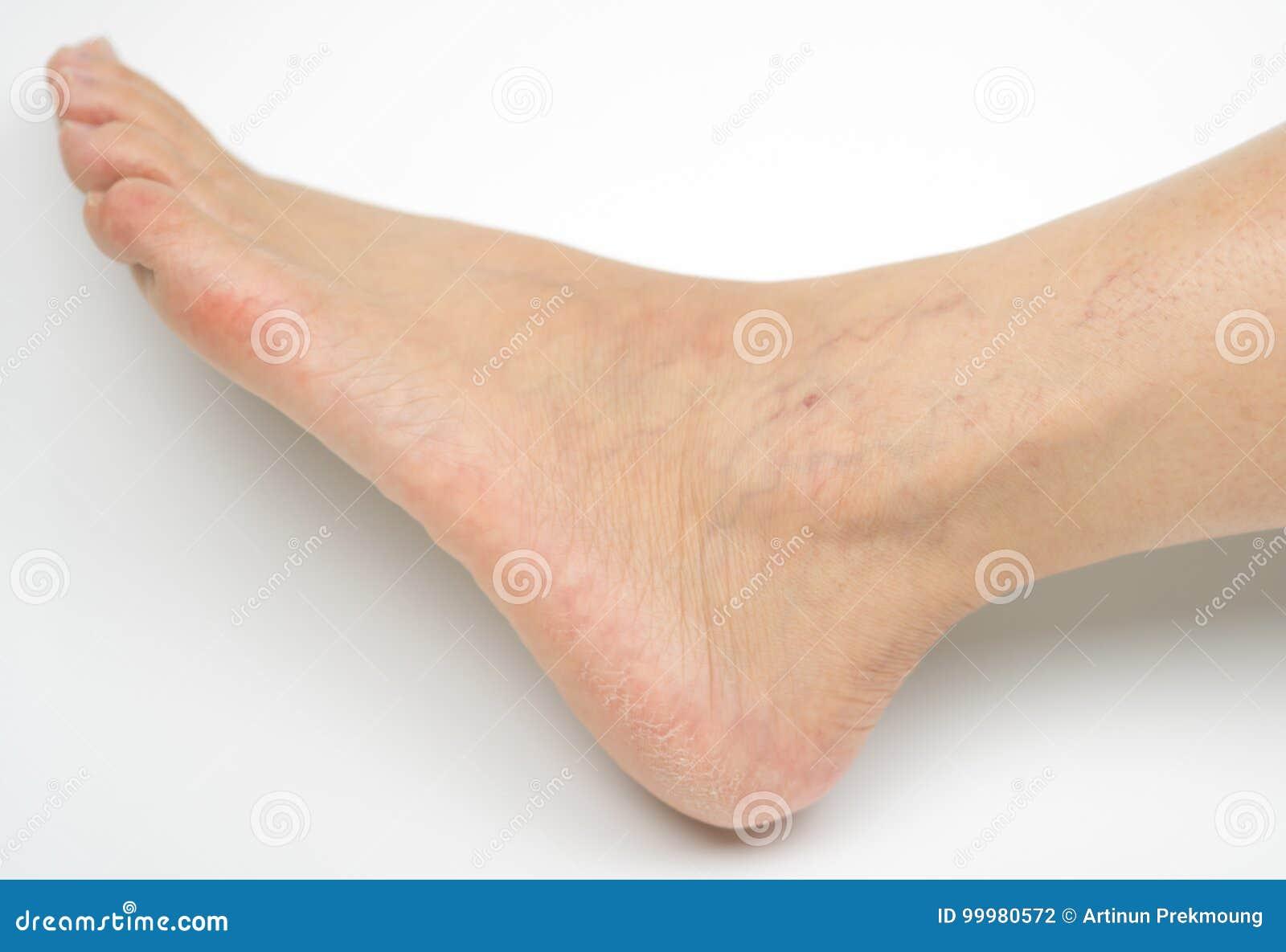 Da pés nos descoloração pele tornozelos e