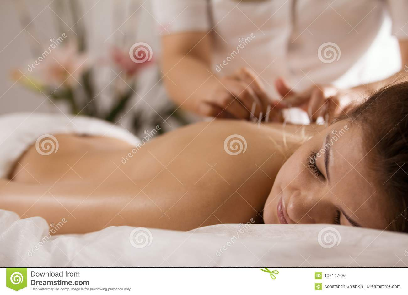 O doutor cola agulhas no corpo do ` s da menina na acupuntura - ascendente próximo