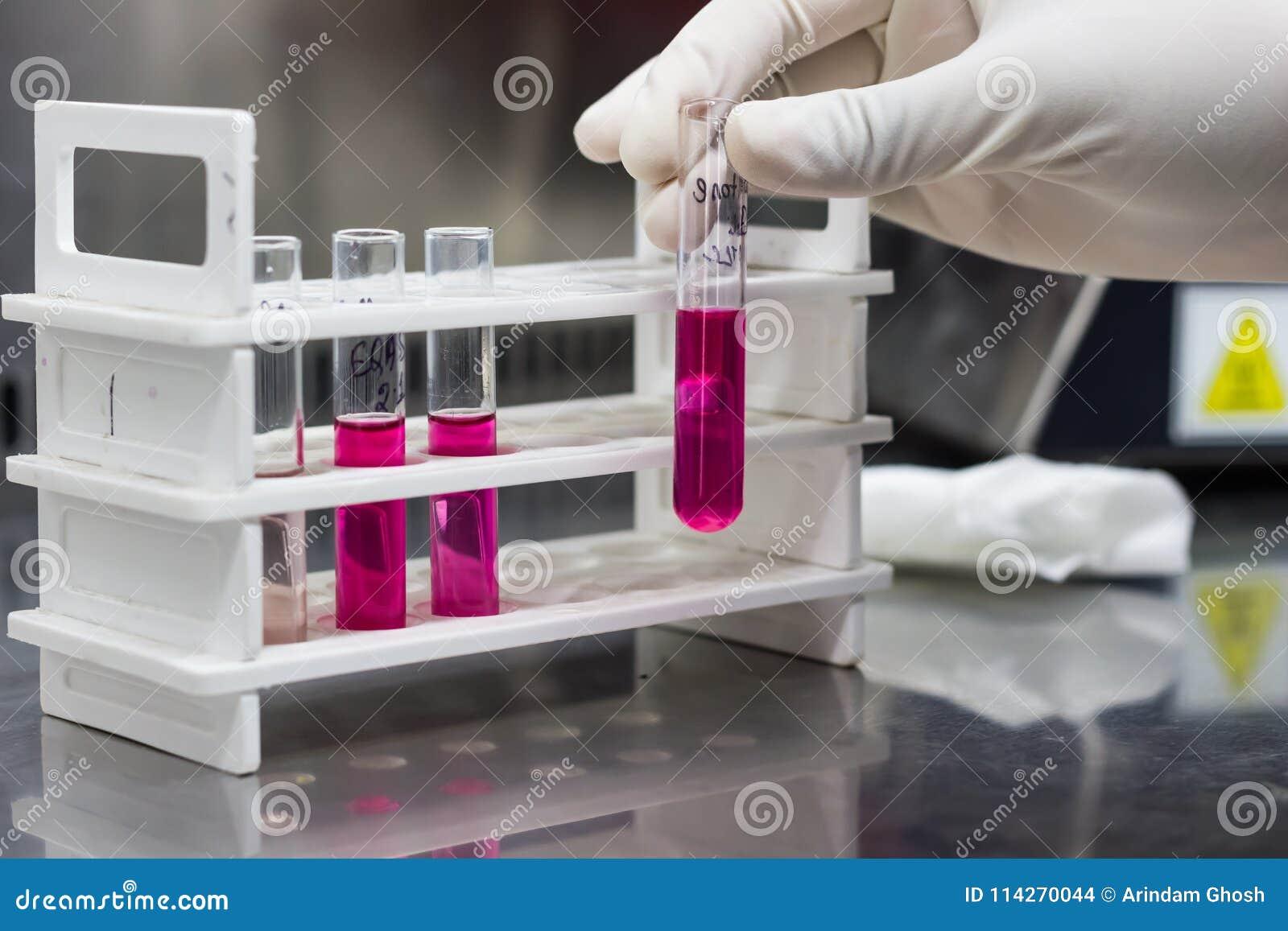 O suporte do tubo de ensaio que mostra o tubo do ` s de Durham nos meios do açúcar que demonstram a produção do gás pelas bactéri