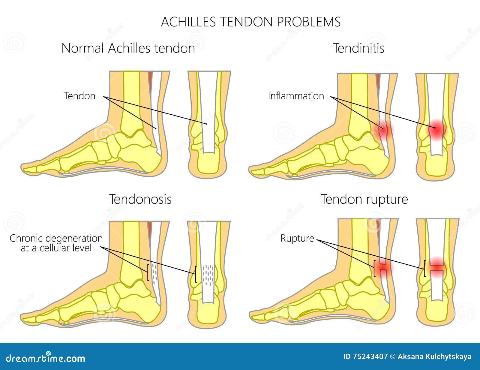 O tendão de Achilles fere