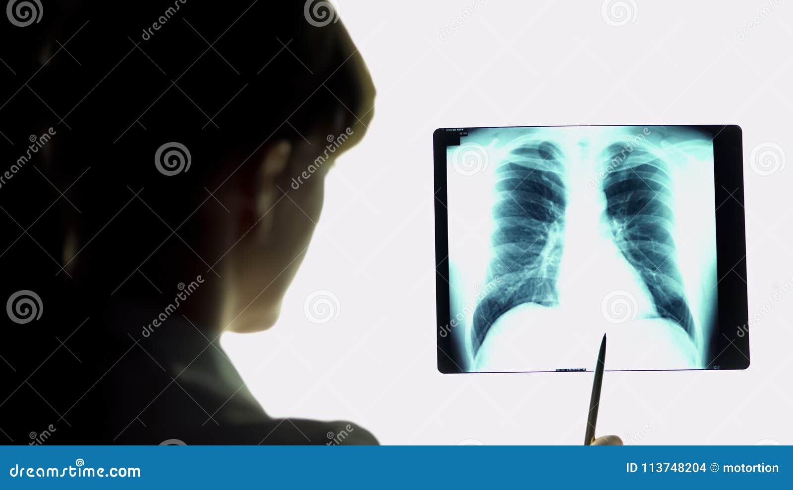 O terapeuta que analisa os pulmões da pneumonia radiografa a imagem, fazendo conclusões, cuidados médicos