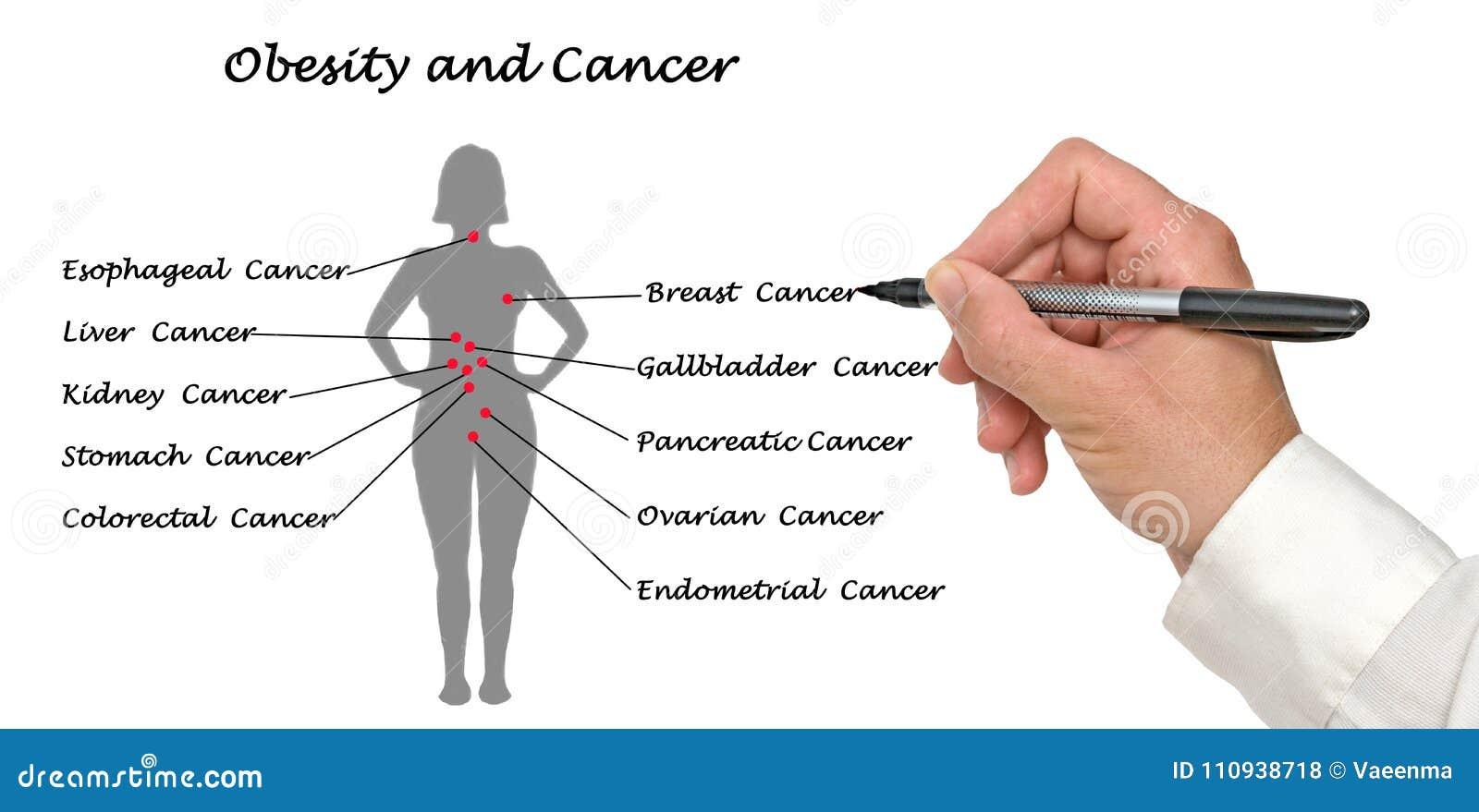 Obesidad y cáncer foto de archivo. Imagen de diagrama - 110938718