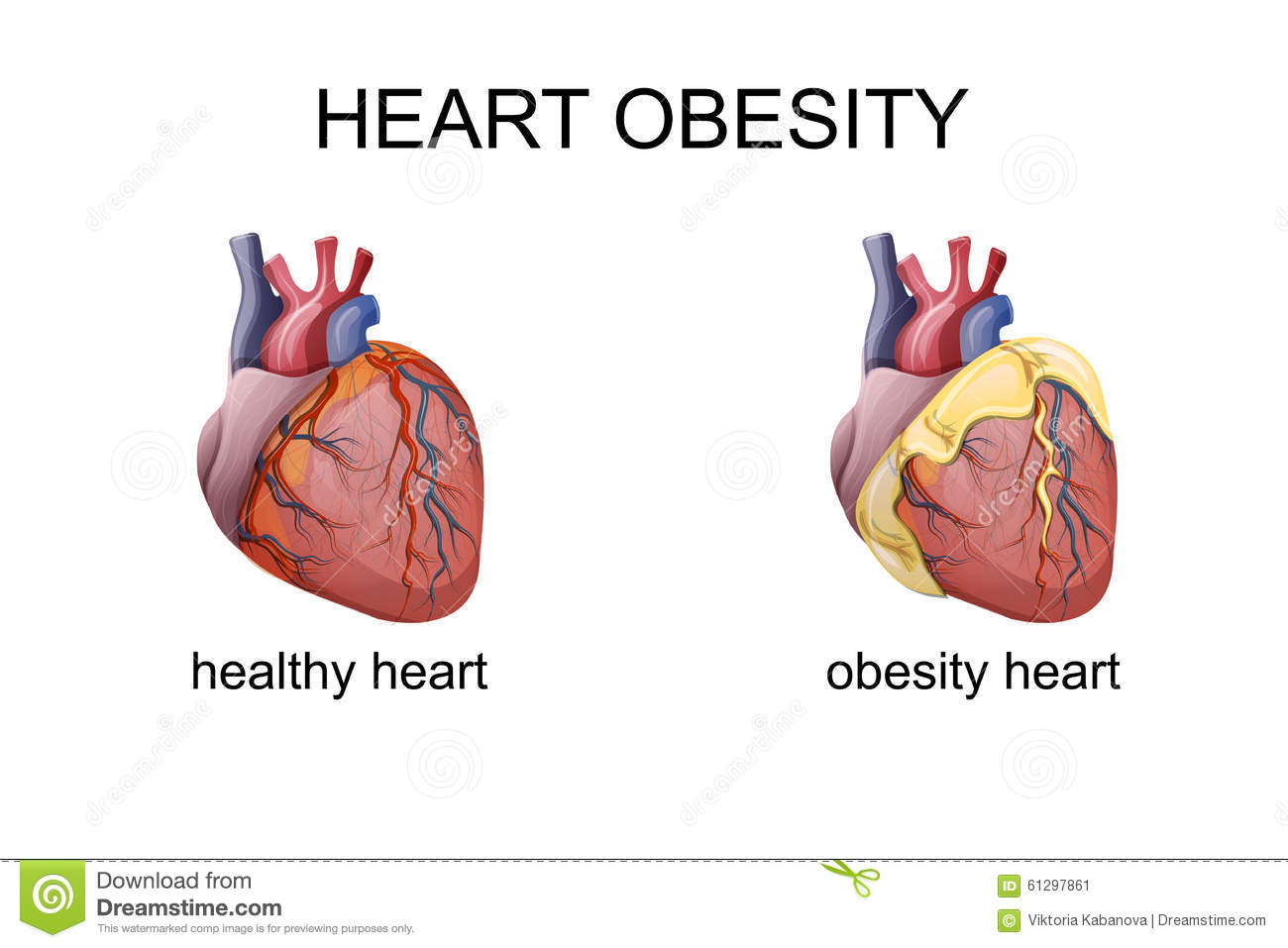 The Obesity Heart Stock Vector Image 61297861