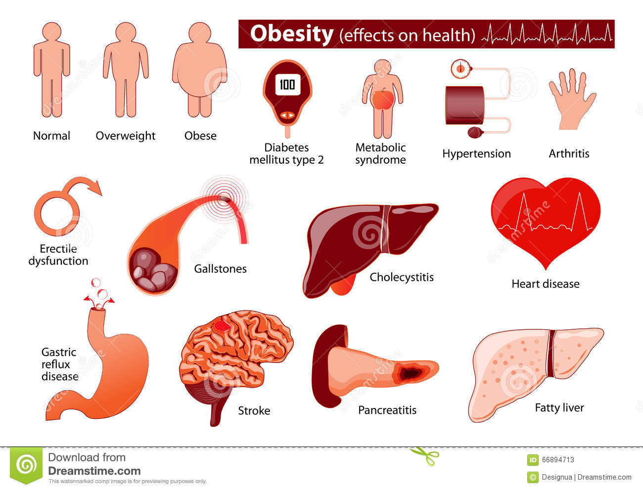Obesity And Overweight Infographic Stock Vector
