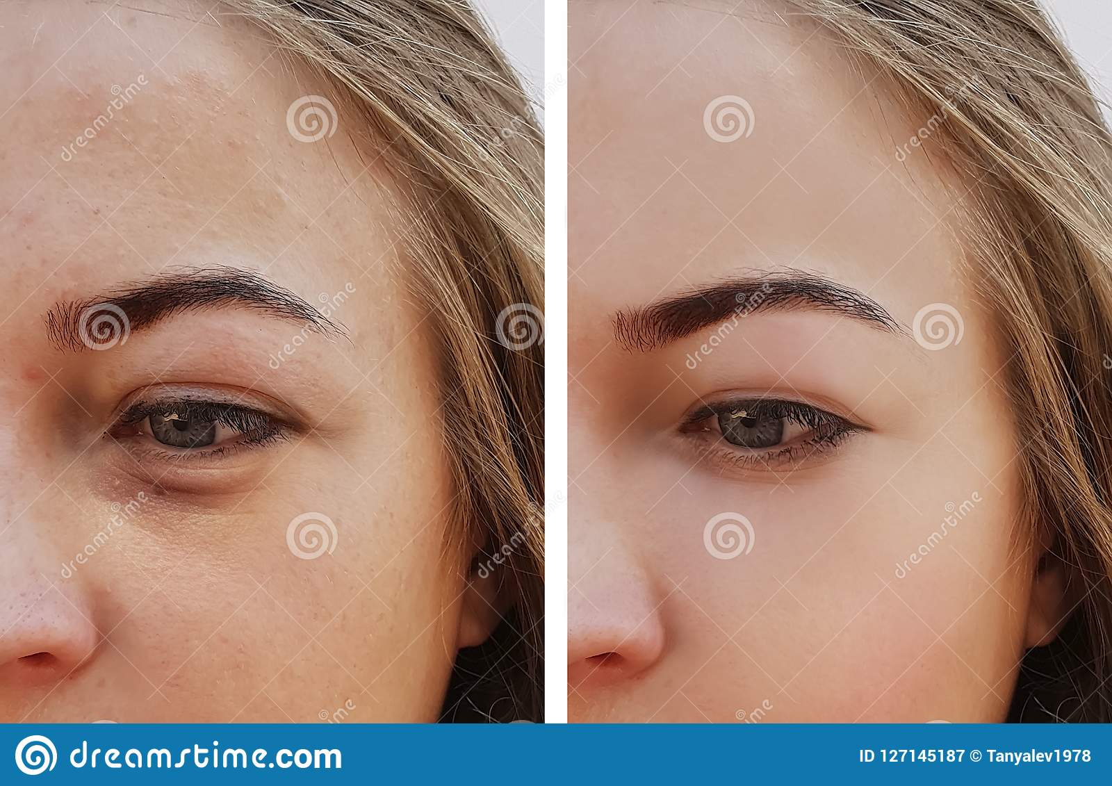 Observe el bolso de la muchacha bajo retiro de los ojos antes y después de procedimientos del cosmético del tratamiento