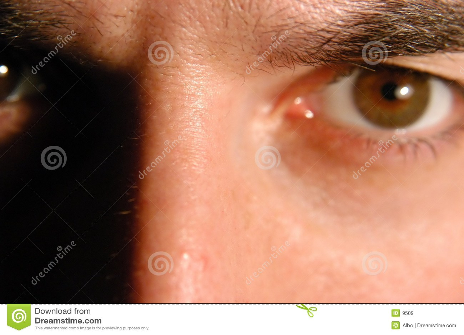 Occhio arrabbiato