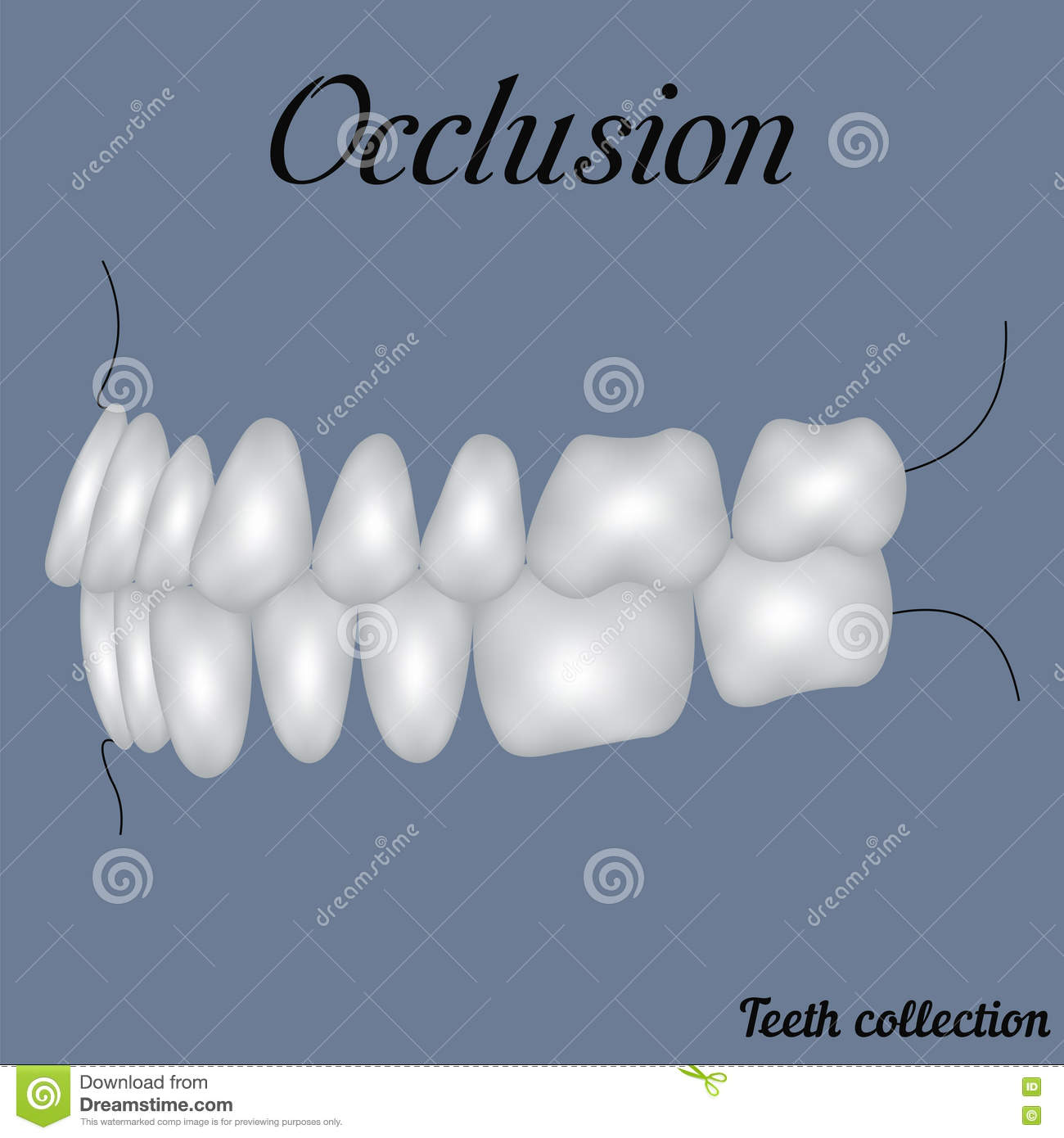 Jawbone stock illustrations 168 jawbone stock illustrations occlusion side view bite closure of teeth incisor canine premolar biocorpaavc Image collections