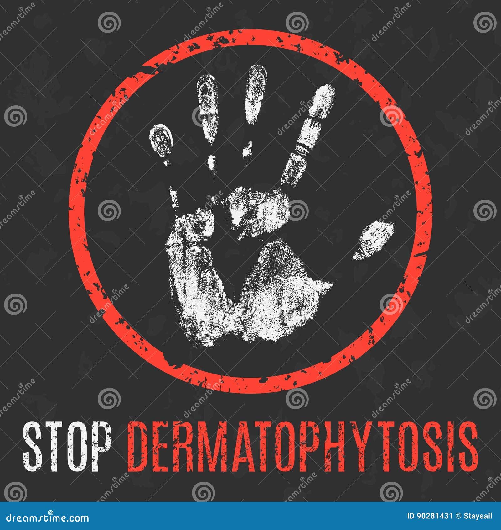 Också vektor för coreldrawillustration Mänsklig sjukdom Stoppdermatophytosis