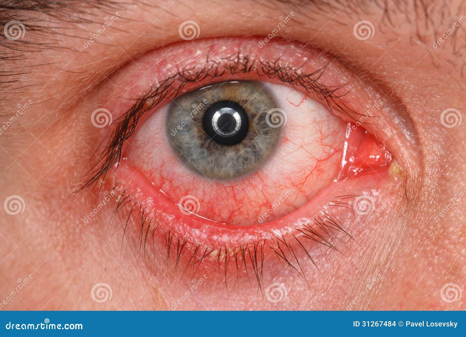 Oeil chronique de conjonctivite