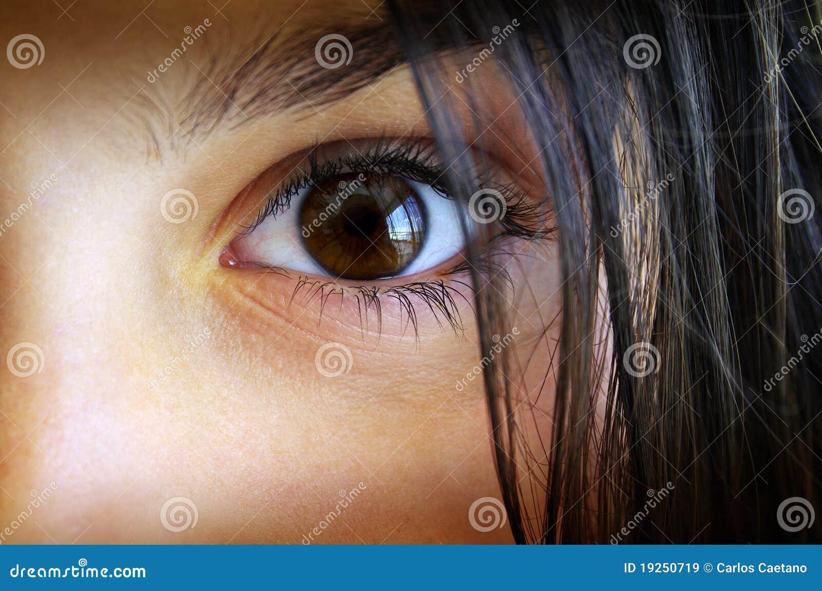 Oeil de Childs