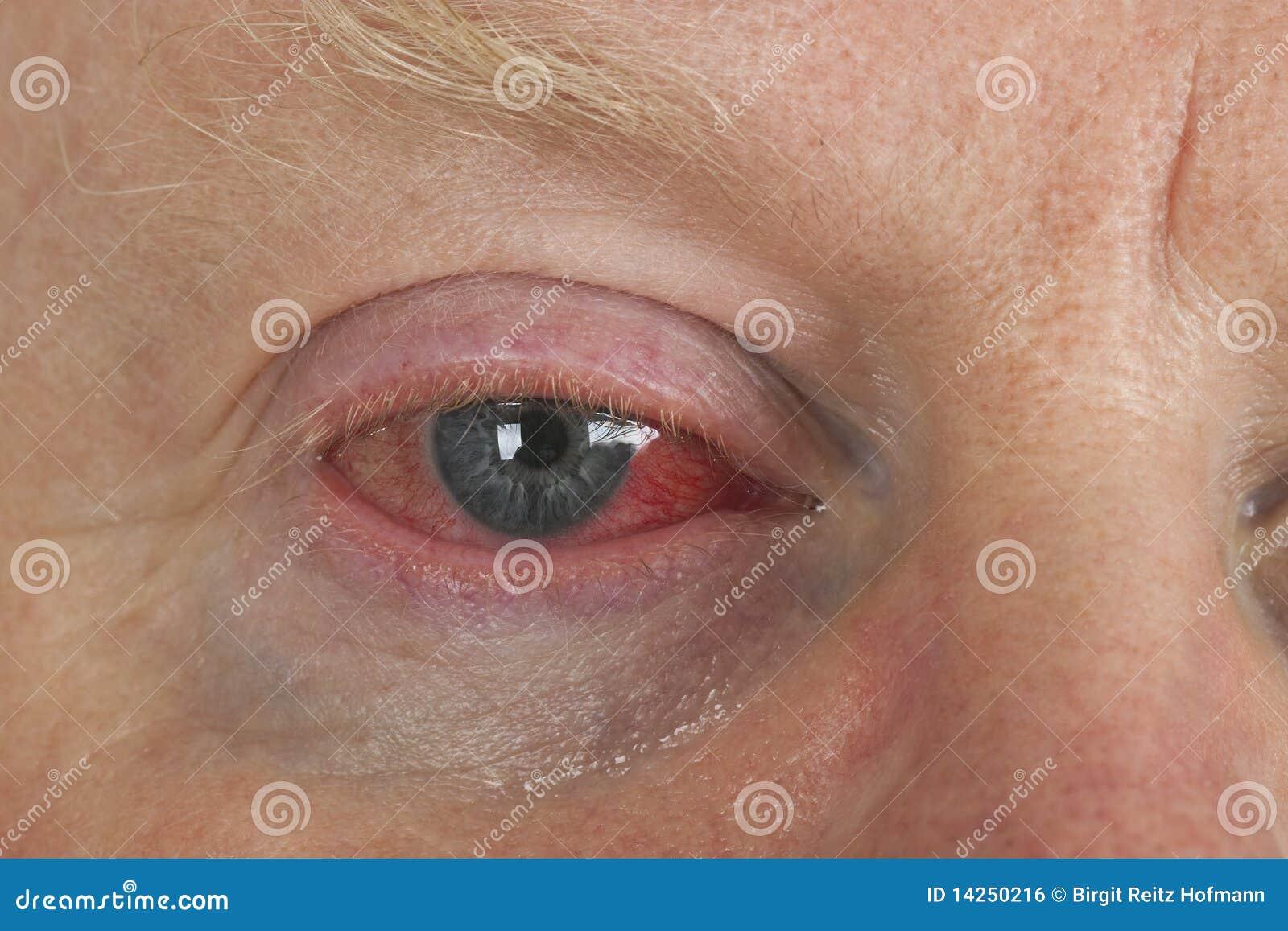 Oeil injecté de sang