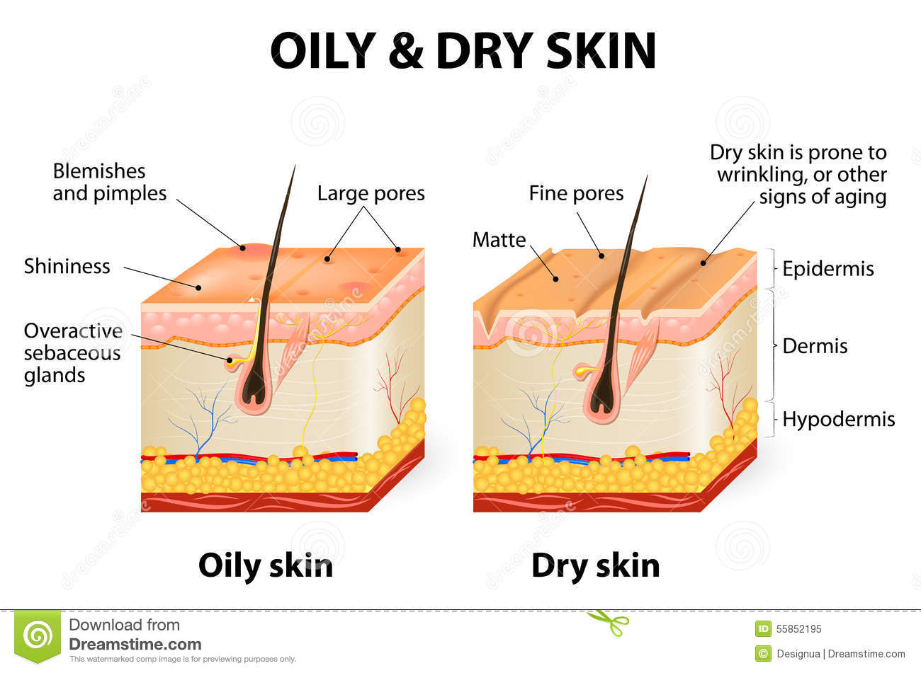 Types of Skin conditions - RightDiagnosis.com