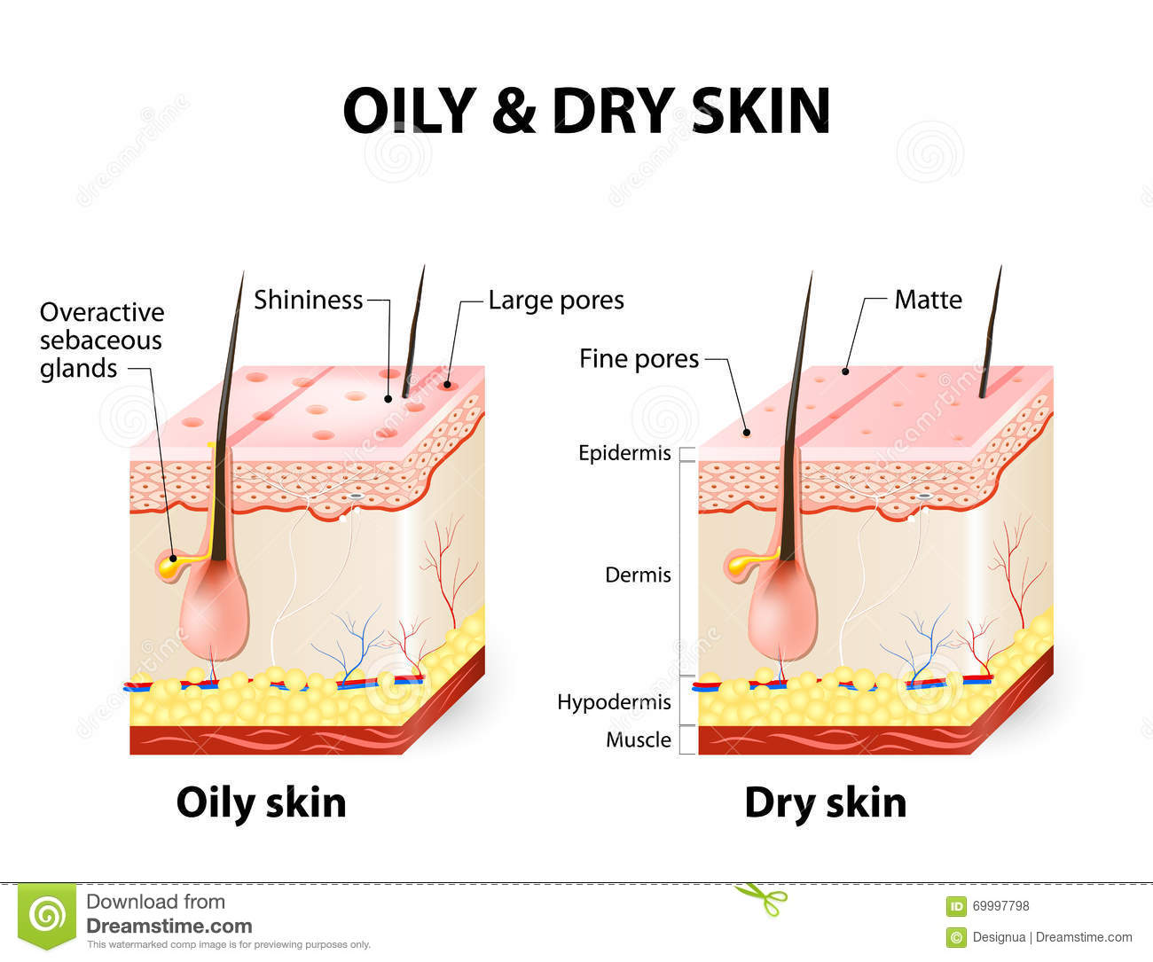 oily & dry skin stock vector. illustration of cell, cracking - 69997798  dreamstime.com