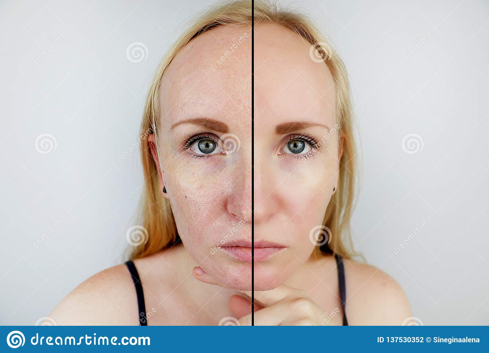 Oily skin and clear skin. Two photos before and after. Portrait of a girl with problem skin