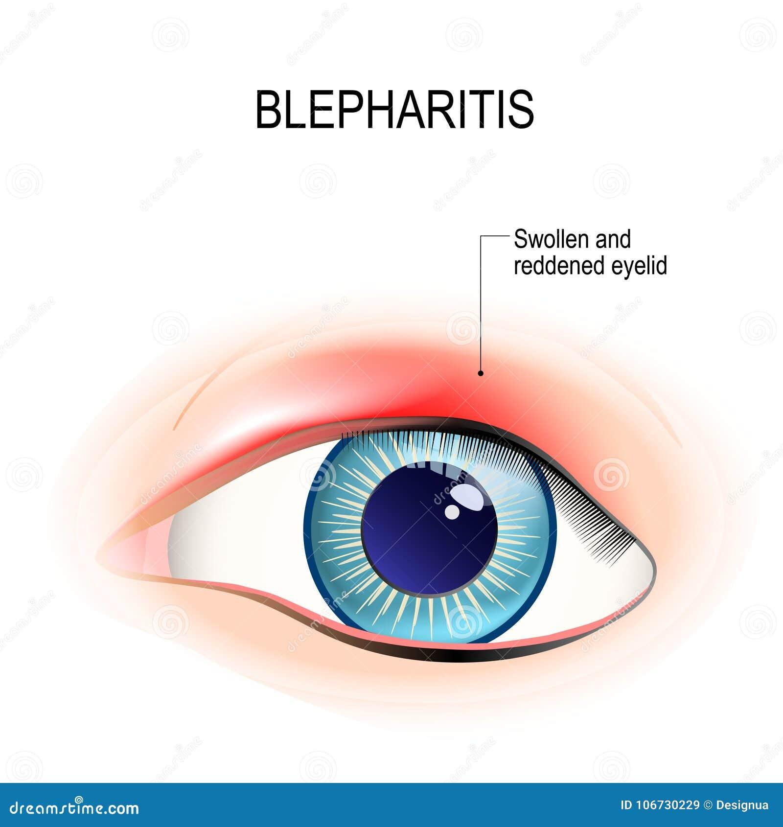 Ojo Del Ser Humano Blefaritis Inflamación Del Párpado Ilustración ...