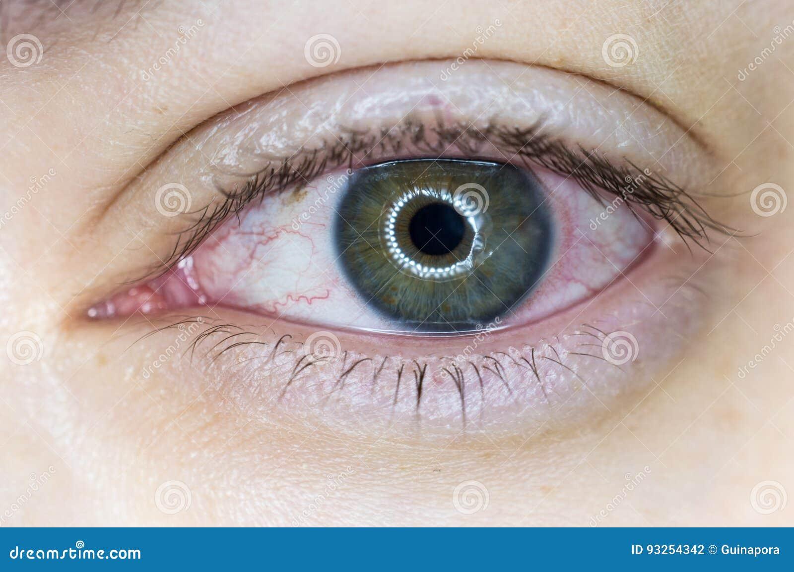 infección de la córnea del ojo