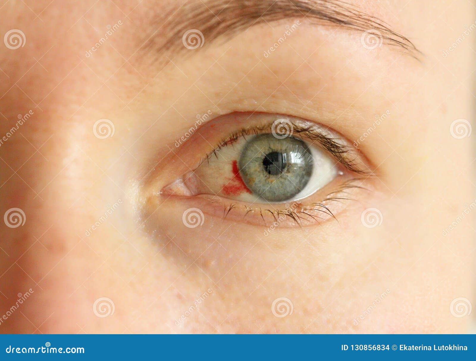 sangre inyectada en la cara