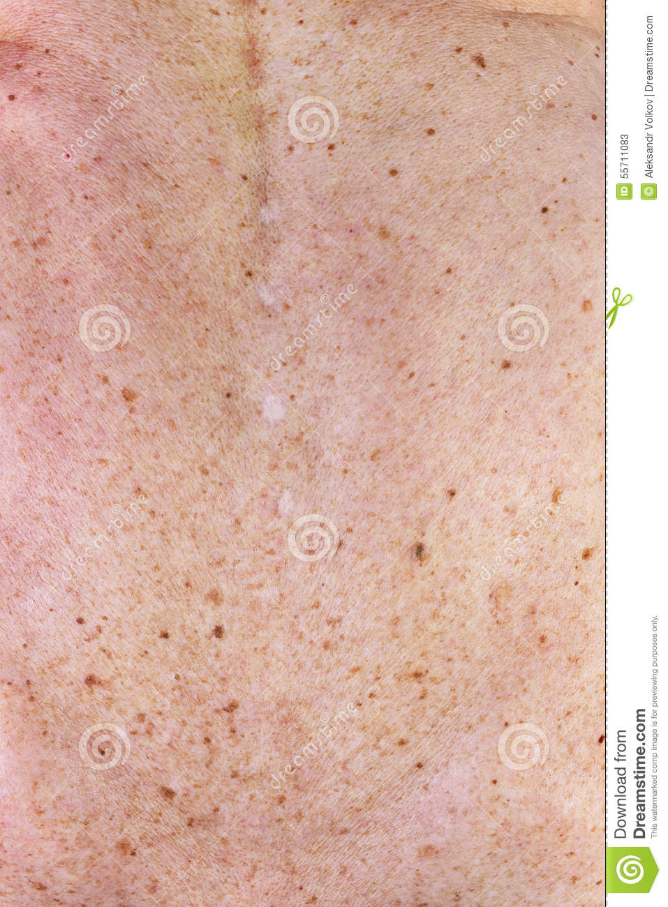 Image Result For How To Cut Off A Mole
