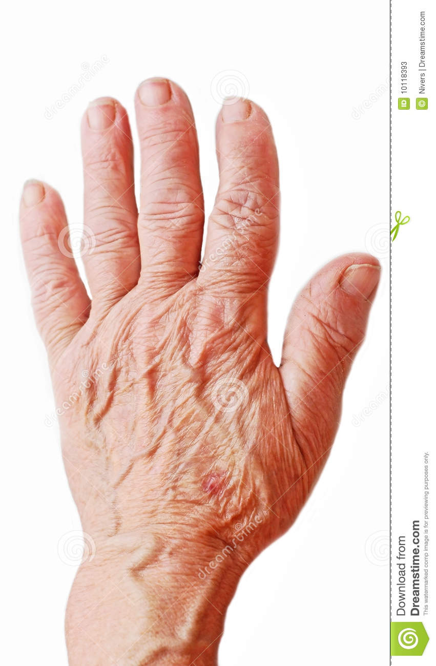 Old Hand Stock Photos - Image: 10118393