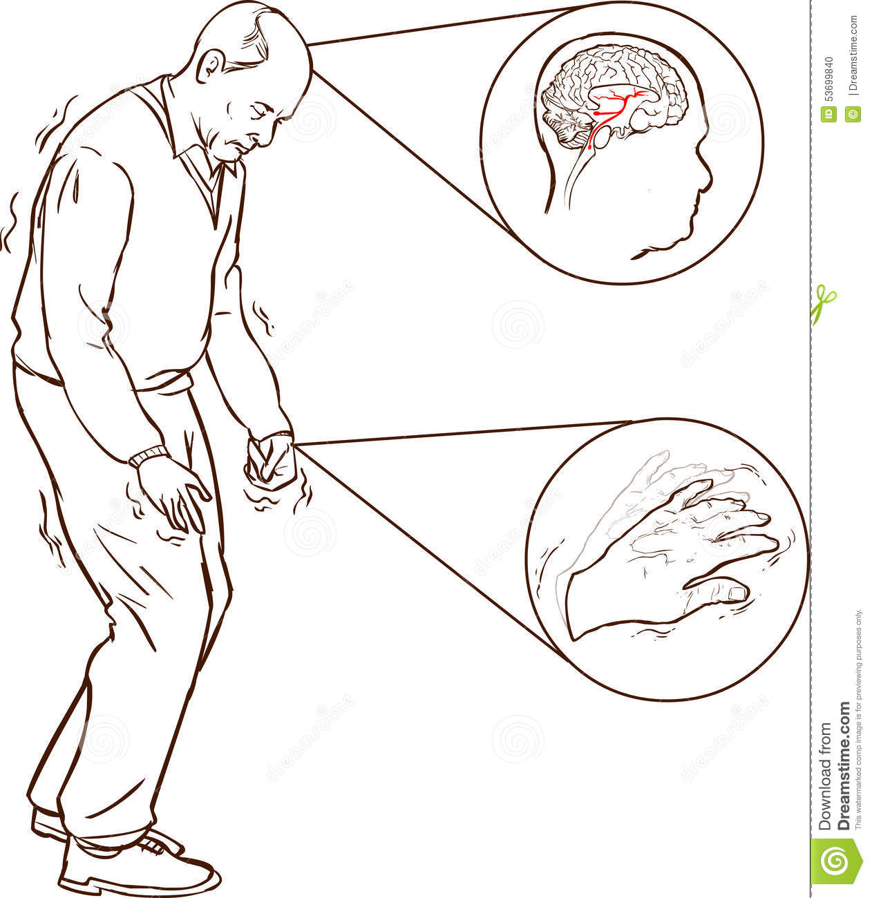 Parkinson: Old Man With Parkinson Symptoms Difficult Walking Stock