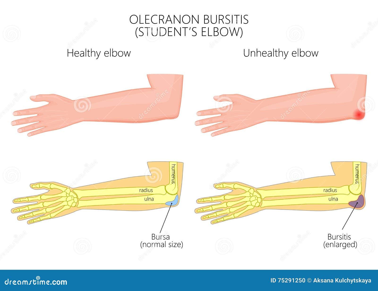 Olecranon Bursitis Or Student\'s Elbow Stock Vector - Illustration of ...
