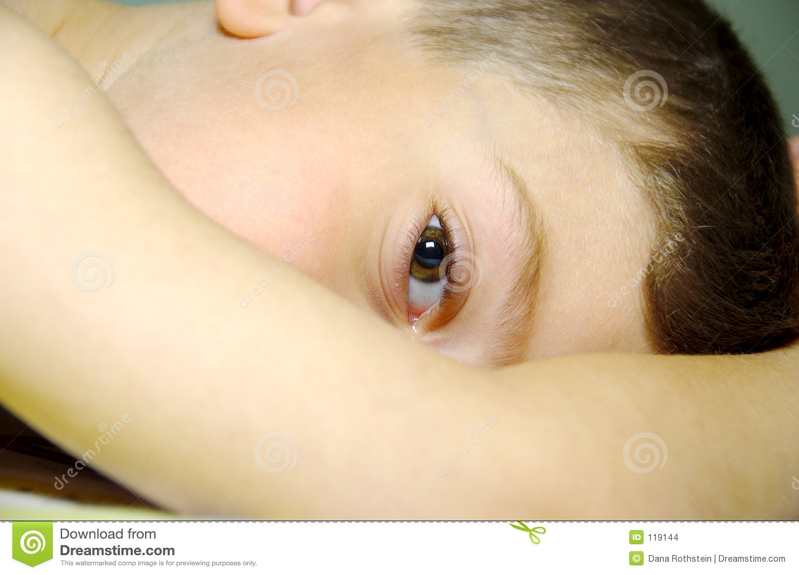 Olho de Childs