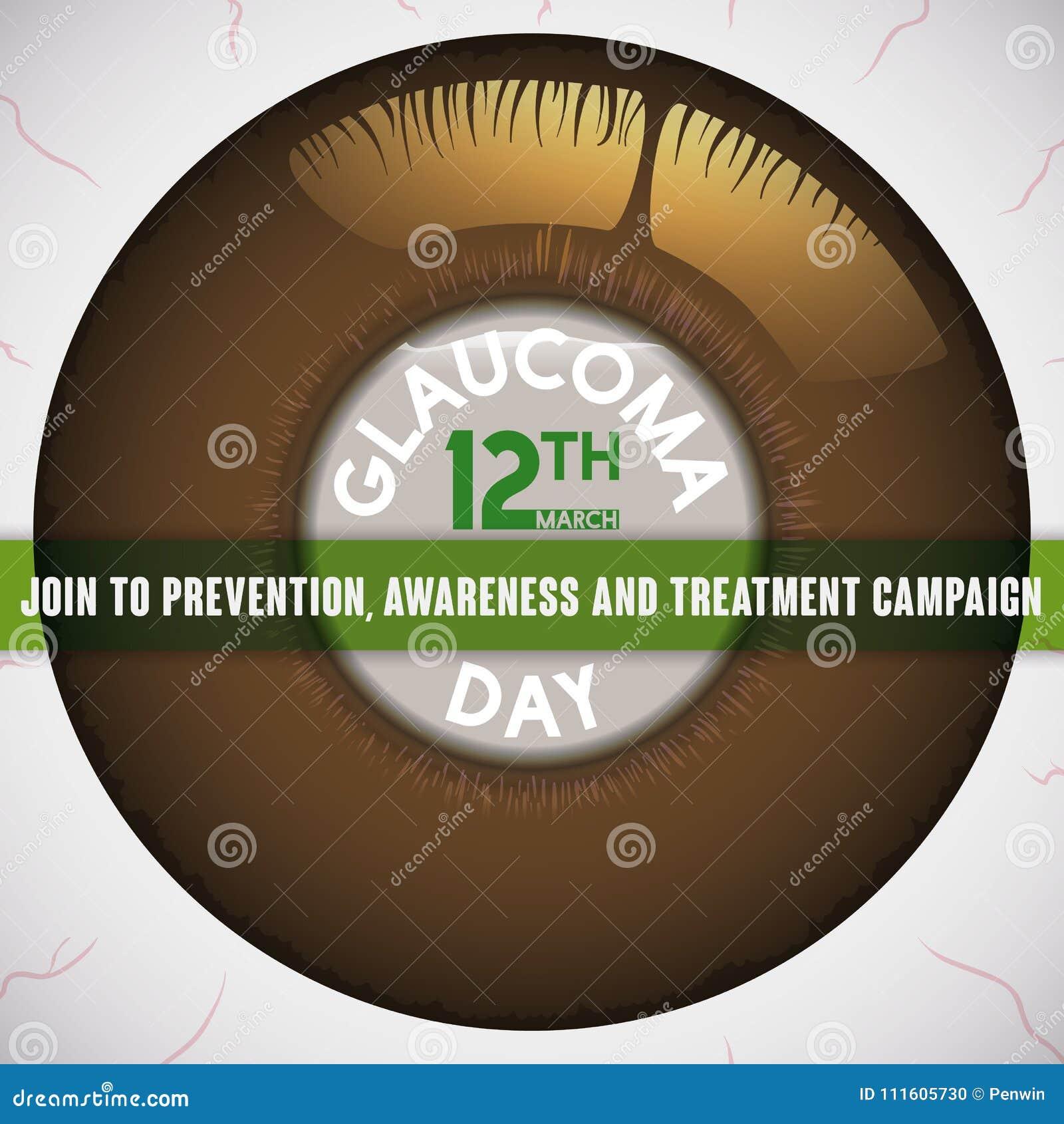 Olho doente com a córnea hidrópico que promove a campanha preventiva contra a glaucoma, ilustração do vetor