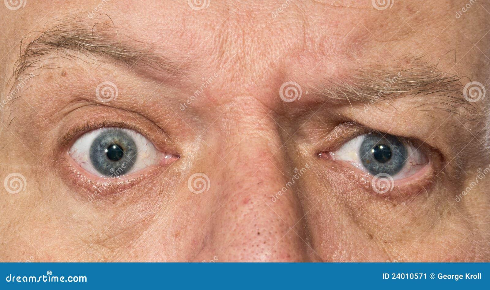 Olhos de um homem que mostra a confusão, surpresa
